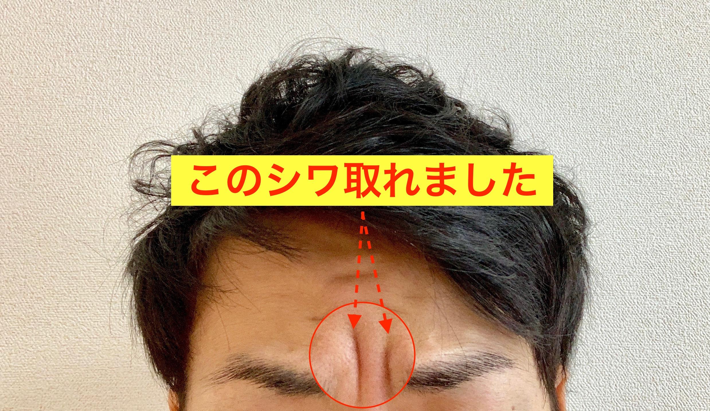 シワ 眉間 の